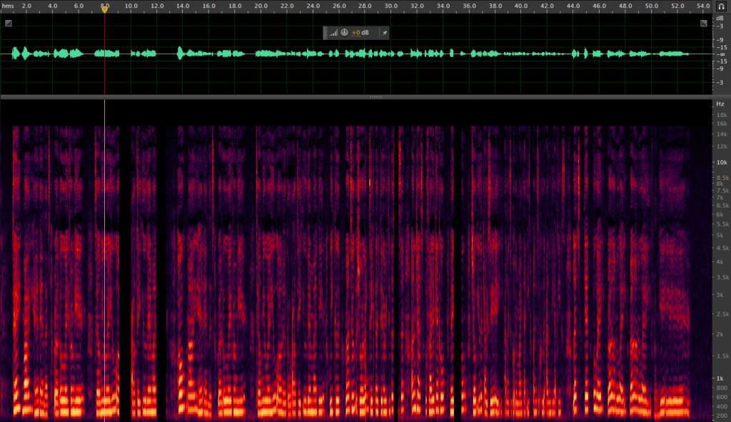 audio anomalies